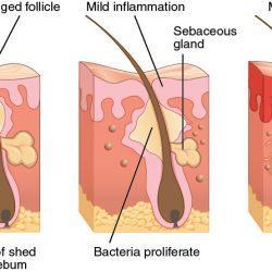 Perché viene l'acne?