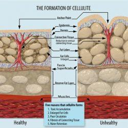 Cos'è la cellulite