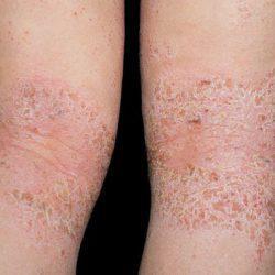 Dermatite atopica foto