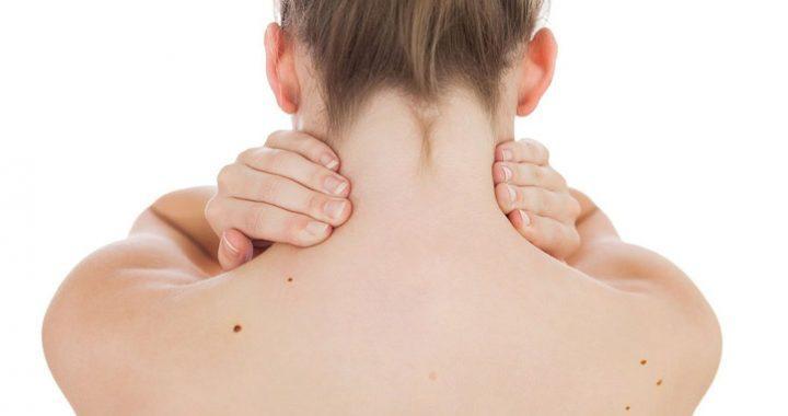 Quando controllare i nei: mappatura digitale dal dermatologo
