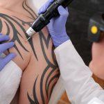 Rimozione tatuaggi con laser Milano